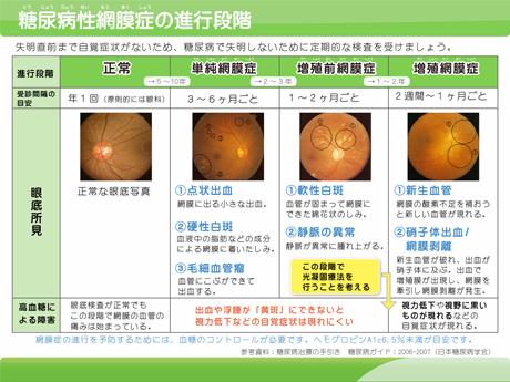 糖尿病性網膜症の進行段階
